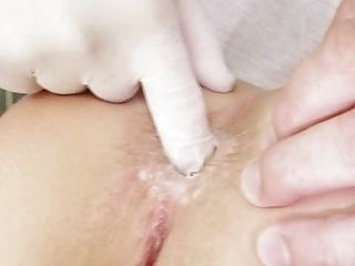 Examen De Gatito Chica Pelirroja Por El Médico Kinky Gyno